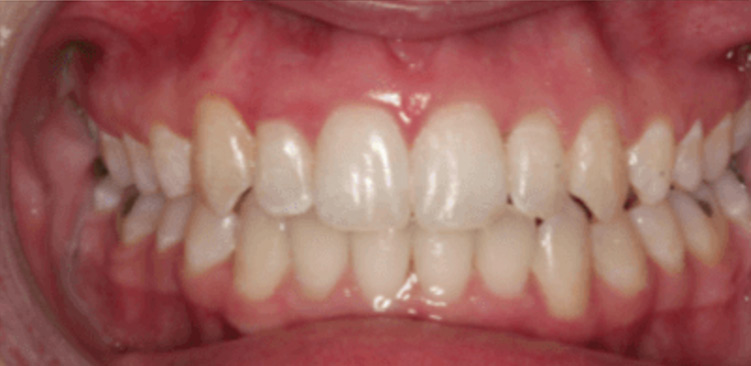 after treatment - invisalign london